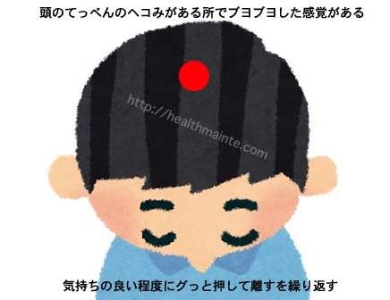 頭にあるツボ百会の画像